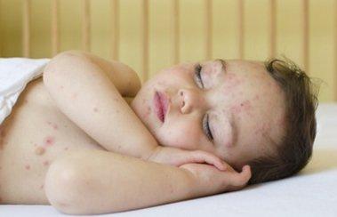Сыпь при ОРЗ у ребенка: почему она появляется и нужно ли с ней бороться? | Деринат
