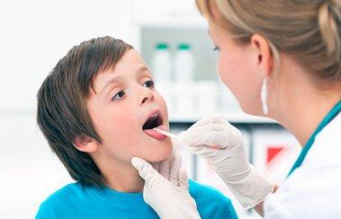 Лечение ОРВИ у ребенка в 4 года: каким правилам следовать? | Деринат